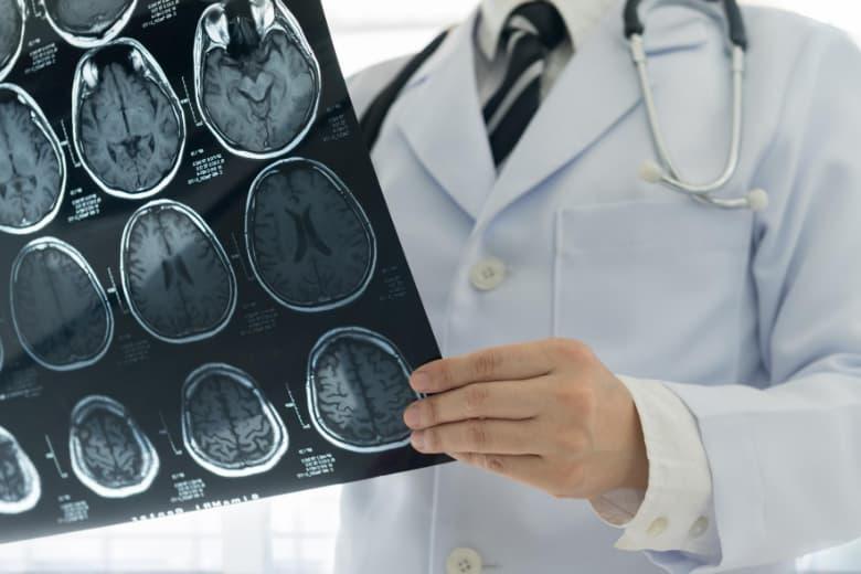 Arzt untersucht MRT des Gehirns